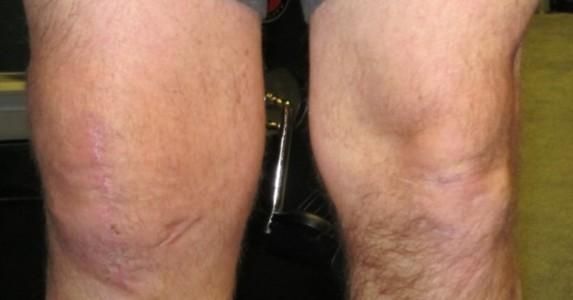 Punca Sakit Lutut Kiri Ketahui 8 Punca Penyebab Sakit Lutut