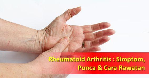 Rheumatoid Arthritis : Simptom, Punca Dan Cara Rawatan